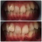 (plus)白い歯にしましょ♪